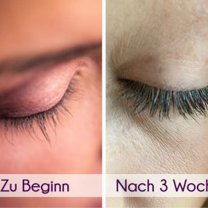 Dr. Massings Long Lashes Wimpernserum